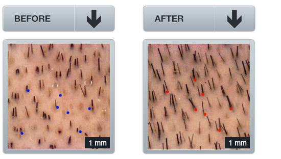 image: clinical trial on hair loss treatment